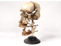 Skull burst with Beauchêne anatomy House Tramond Paris medicine nineteenth